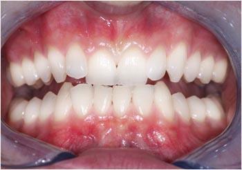 teeth whitening Bury, Prestwich & Manchester