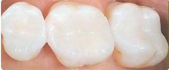 white fillings Bury, Prestwich & Manchester