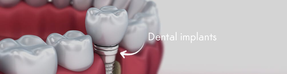 dental implants in manchester