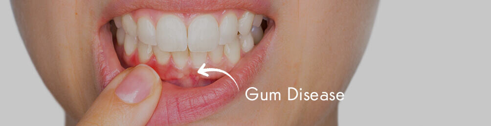 Gum Disease & Gingivitis Treatment in Manchester – Oakley Dental